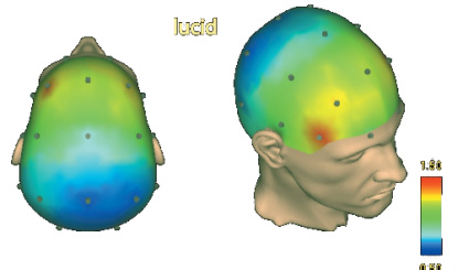 The Dorso-Lateral Prefrontal-Cortex and Lucid Dreaming - The Lucid